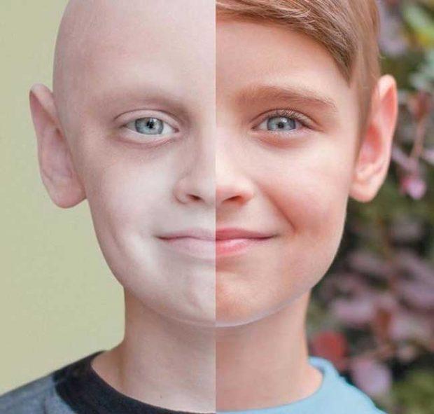 Преди и сега: Момче, което успя да победи рака