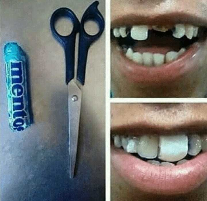 Нямаш пари за зъболекар? Ментос!