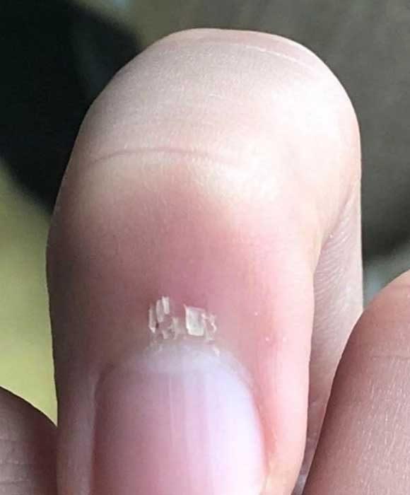 Първо това боли. Второ, не спираш да си удряш точно този пръст в почти всичко, в което може...