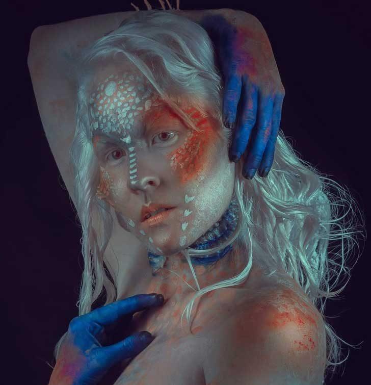 Има нещо магично в хората с албинизъм