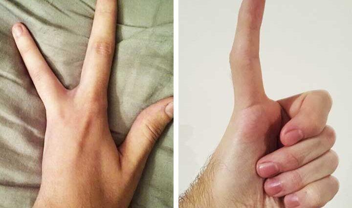 Уникални хора споделят снимки на части от тялото си, които изумиха интернет