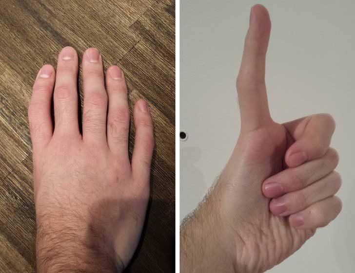 Трифланговите палци имат допълнителни кости, което ги прави подобни на другите пръсти