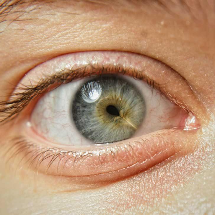 Да, дори и очите могат да имат белези... И те изглеждат изумително