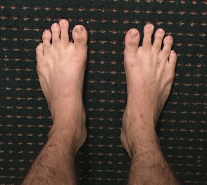 Големите пръсти на краката в този случай не са толкова големи