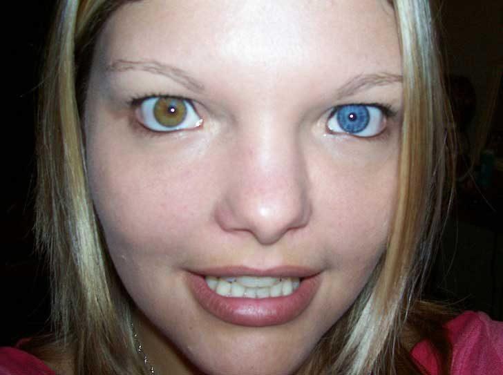 Хетерохромията може да доведе до различен цвят на очите