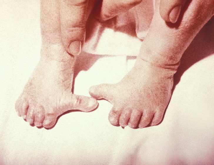 Полидактилията е състояние, при което хората имат повече от обичайните 5 пръста