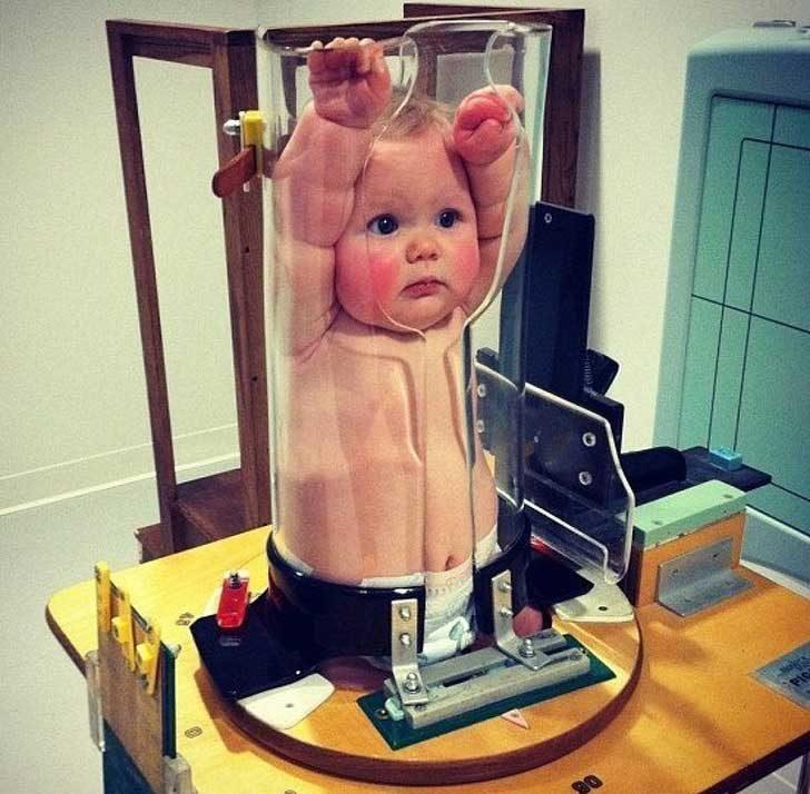 Ето как се прави рентгенова снимка на бебе