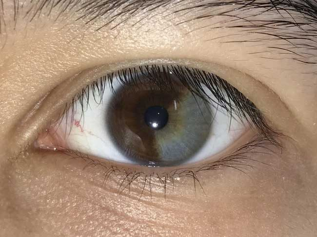 """Лявото ми око е около 2/3 кафяво и 1/3 сиво"""