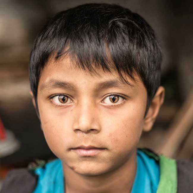 """""""Момче от Непал със синдром на котешкото око"""""""