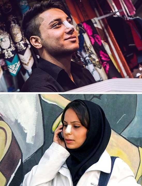 Хирургически превръзки на лицето, Иран