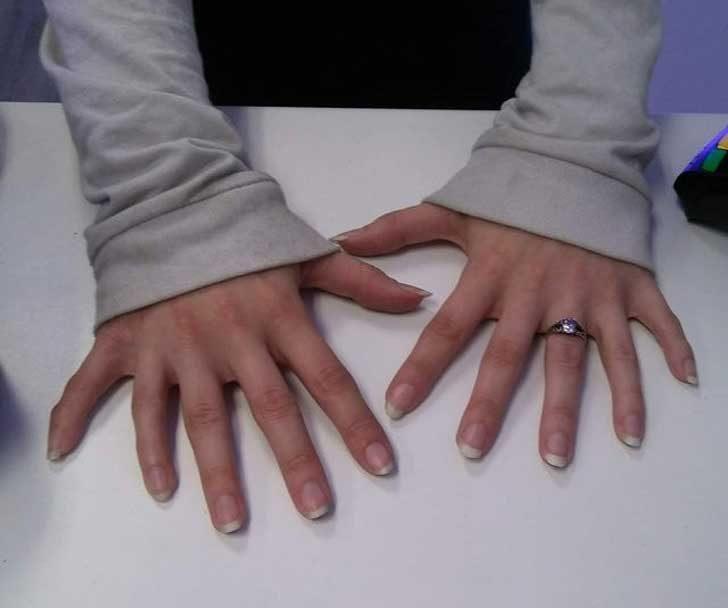 """""""При мен дойде клиентка и ми позволи да снимам ръцете ѝ, които имат по 6 пръста всяка"""""""