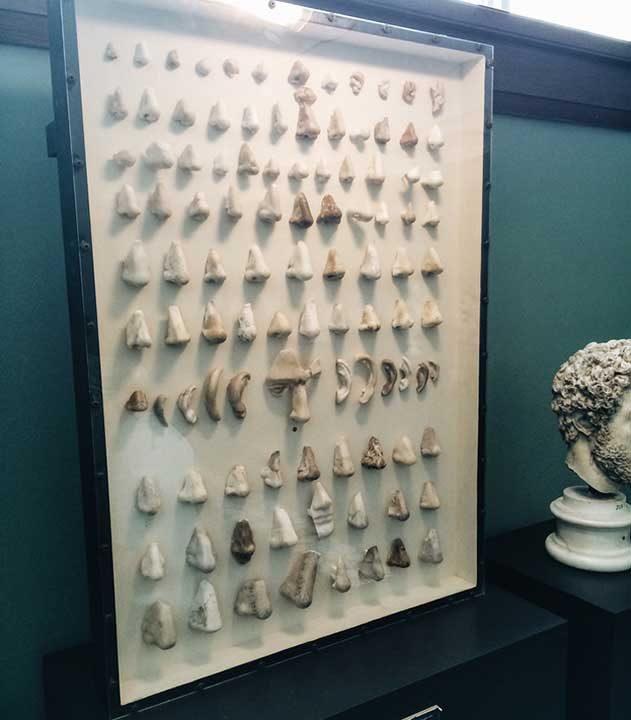 Колекция от счупени носове и уши от различни статуи