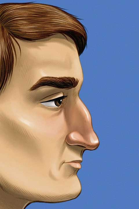 Римски нос